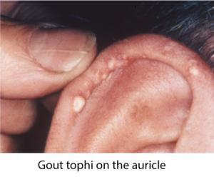 gout tophi