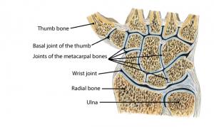 osteoarthritis hand thumb