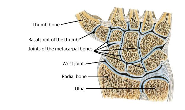 Osteoarthritis Hand (Thumb): Cause, Symptoms & Treatment