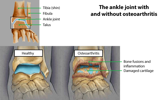 arthritis ankle foot toe