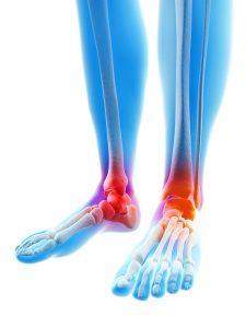 osteoarthritis ankle foot toe