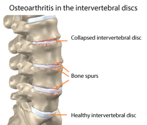 arthritis back intervertebral disc
