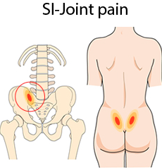 SI-joint