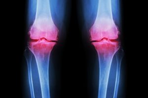 Inflammations in the joints