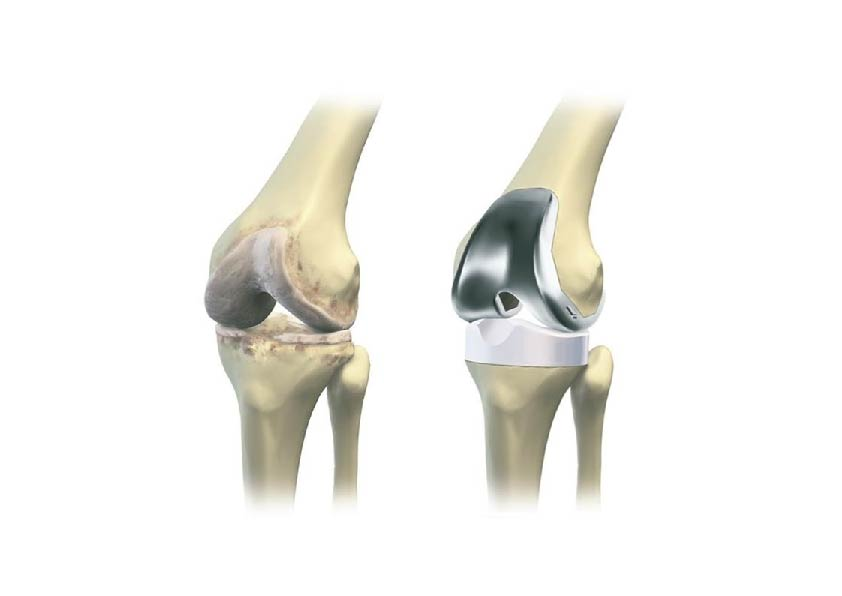 knee prothesis There are several types of prosthesis components that can be used for total knee replacement, including fixed or rotating mobile bearing), pcl retaining or sacrificing.
