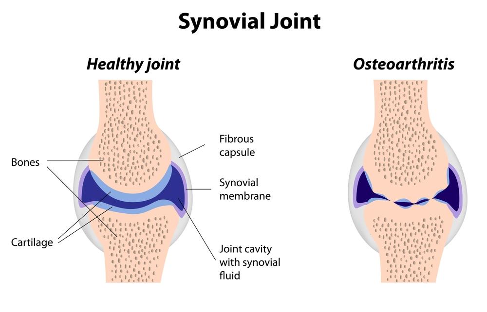 Osteoarthritis in the shoulder