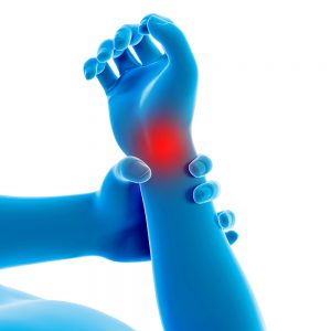 Osteoarthritis in the wrist