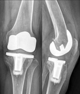 X-ray of a knee prosthesis