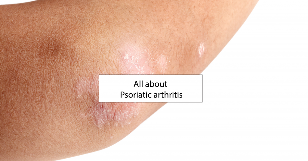 reactive arthritis causes features and treatments Reactive arthritis is a condition that causes inflammation, pain and swelling of the joints it usually develops after an infection, often in the bowel or genital areas the infection causes activity in the immune system.