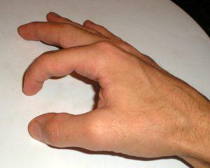 osteoarthrosis in pip joint