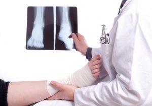 Osteoporosis Broken bone