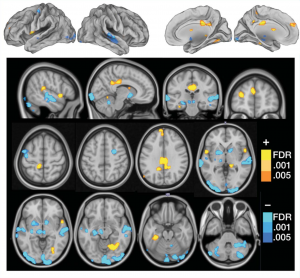 brain fibromyalgia